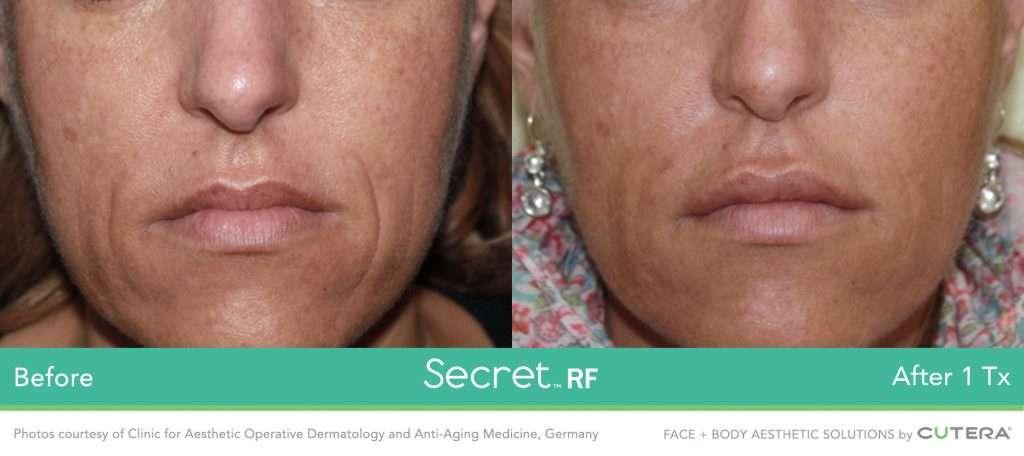 Scars Maine Laser Skin Care