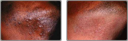 Treatment of Pseudofolliculitis Barbae (PFB),